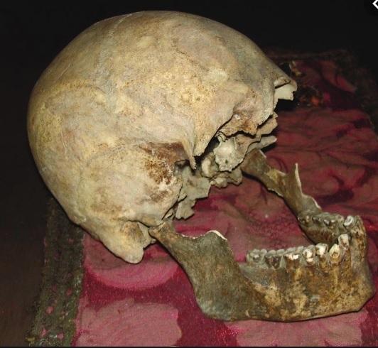 Cranio di Plinio il Vecchio